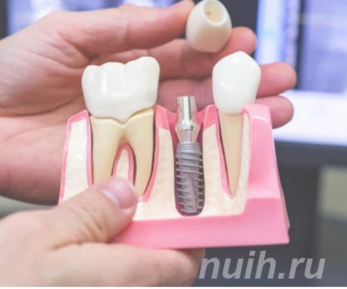Имплантации зубов в Калининграде,